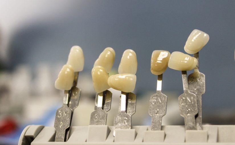 Piękne urodziwe zęby również olśniewający cudny uśmieszek to powód do dumy.